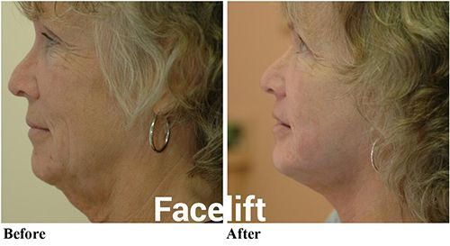 Clearwater facial plastic surgery