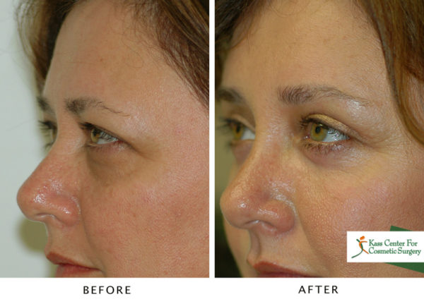 Eyes, Forehead and Festoons | Cosmetic Surgery Gallery