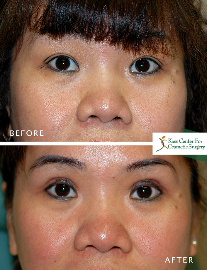 Asian Eyelid Surgery St. Petersburg | Double Eyelid Surgery Tampa Bay