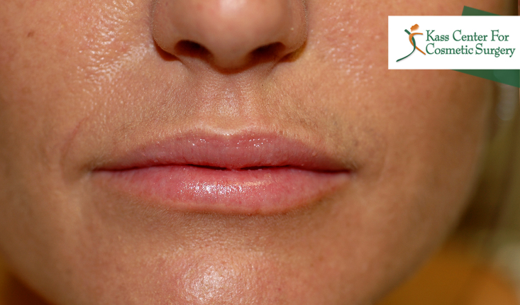 Lip Augmentation | Lip Injections | St  Petersburg