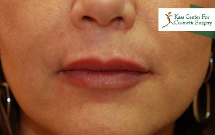 Lip Augmentation | Lip Injections | St  Petersburg