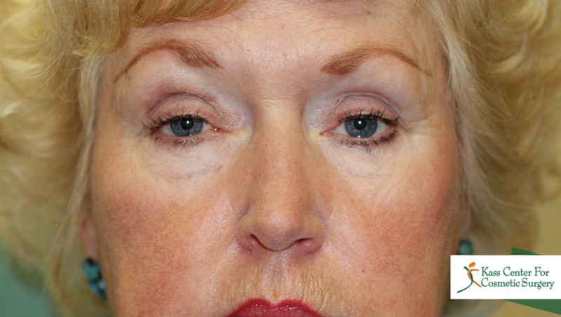 Drooping eyelids and facial numbness