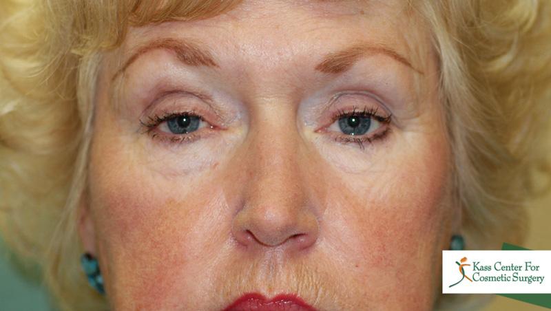 Eyelid Ptosis Surgery
