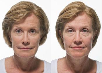 Radiesse Facial Fillers | St  Petersburg, FL | Dr  Kass