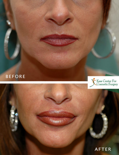 Lips Plastic Surgery - Before & After Gallery - Kass Center