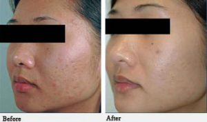 Acne Scar Treatment St. Petersburg