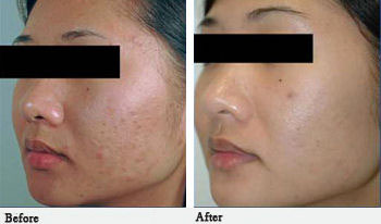 Facial acne scar treatment