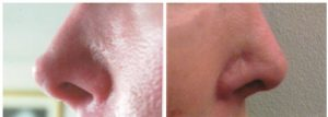 Non-surgical Nose Job in St. Petersburg