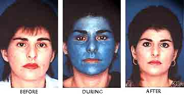 Skin Face Khouri