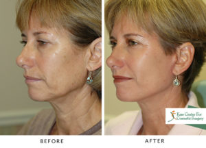 Before and after comparison of a patient that was more than thrilled with the results.