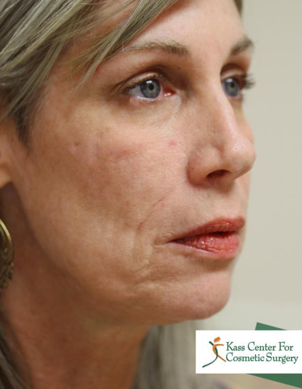 Facial Fat Transfer