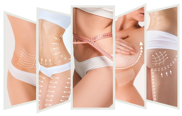 Kass Center Liposculpturing
