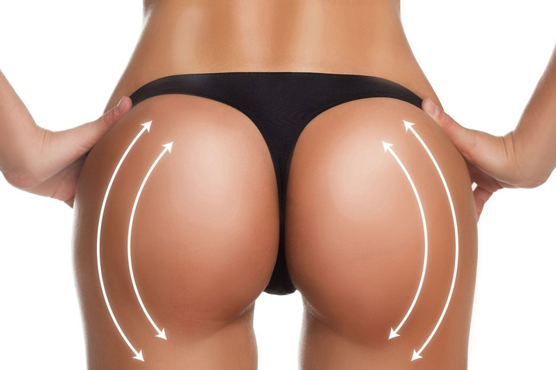 Kass Center Brazilian Butt Lift