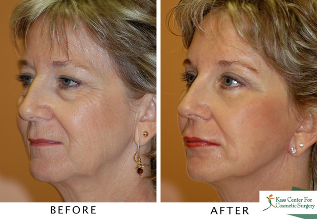 Is a Weekend Facelift Right For You?
