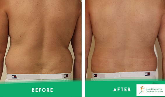 Before After Liposculpture