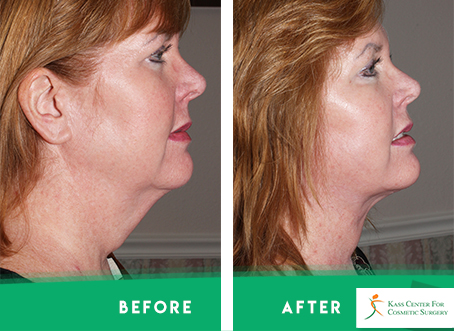 Necklift - Before & After
