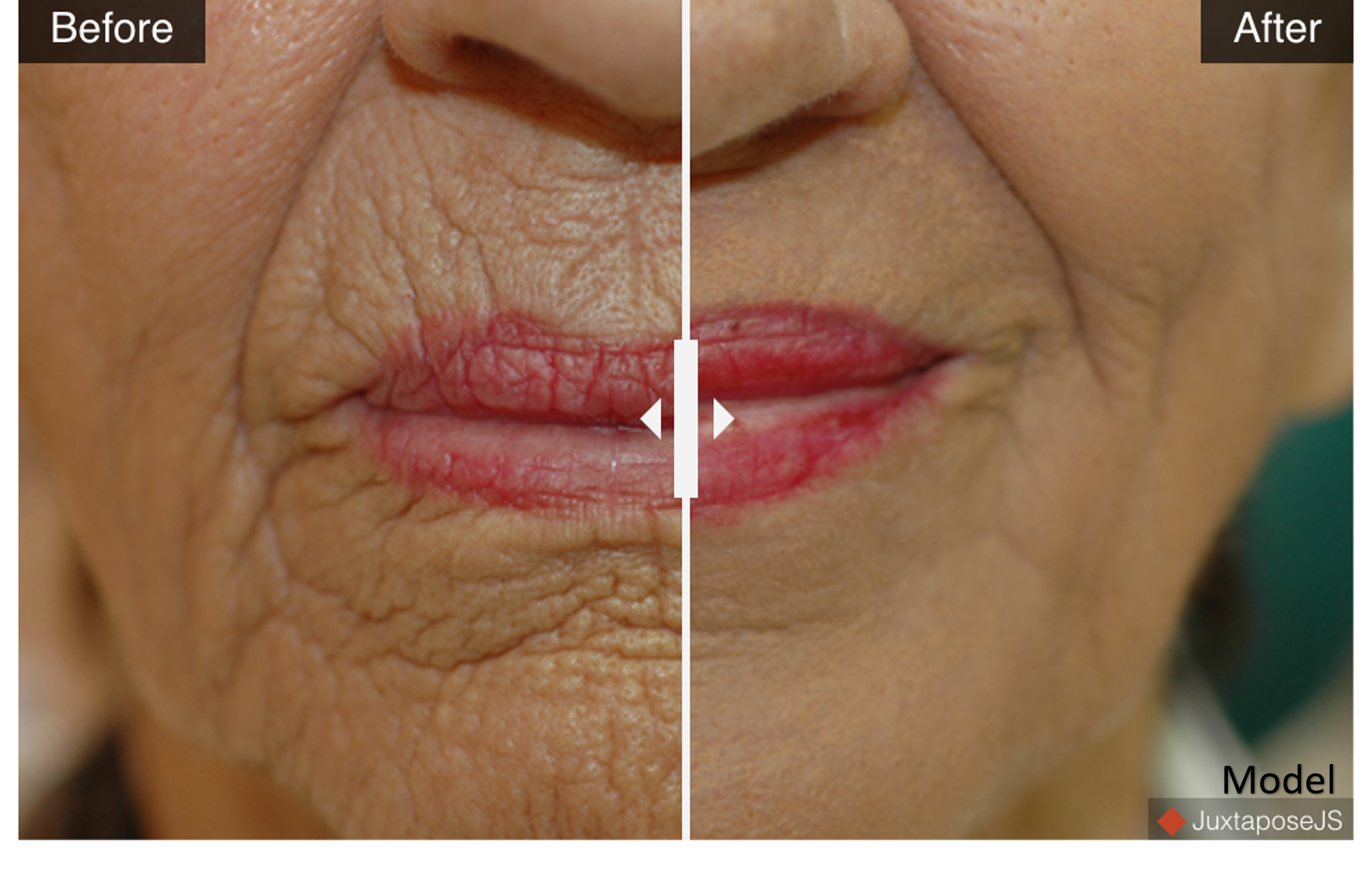 Deep Facial Resurfacing - Hetter Peel