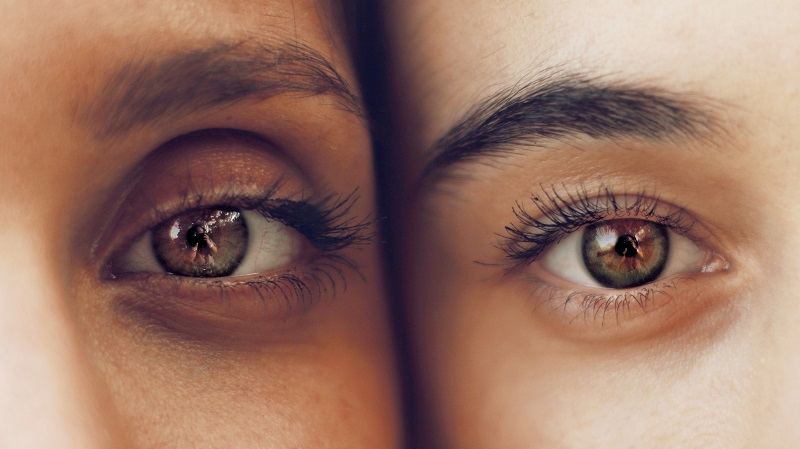 Upper Eyelid Surgery or Brow Lift Which is Right For You